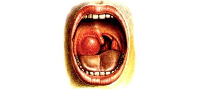 Ангина: симптомы и проявления, способы лечения и виды
