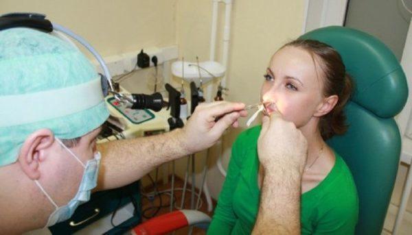 Тампоны и турунды в нос при гайморите - как правильно делать