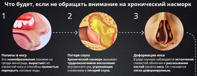 Что показывает магнитно-резонансная томография (МРТ) пазух носа