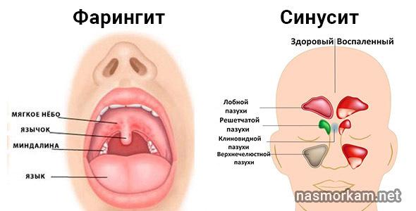 Боль в горле отдает в ухо с одной стороны - что делать