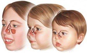 Симптомы и признаки гайморита у детей - как определить проявления у ребенка