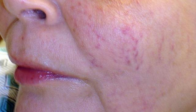Аллергический отек гортани - симптомы воспаления горла при аллергии