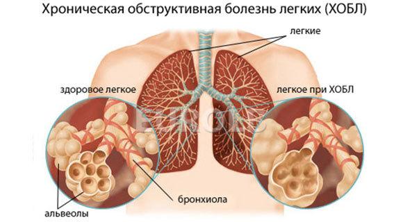 Кашель курильщика – причины и симптомы