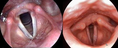 Симптомы кандиды в горле - признаки молочницы