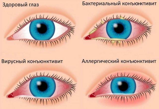 Что делать если насморк и слезятся глаза – как правильно лечить