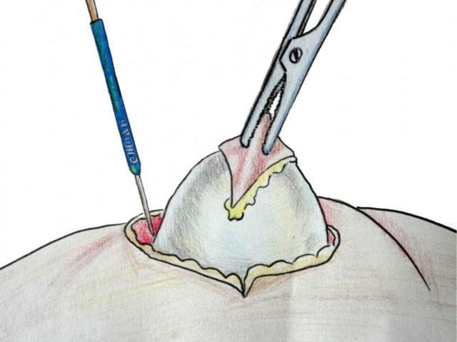 Шишка и шарик в мочке уха – что делать, если появилось уплотнение и болит
