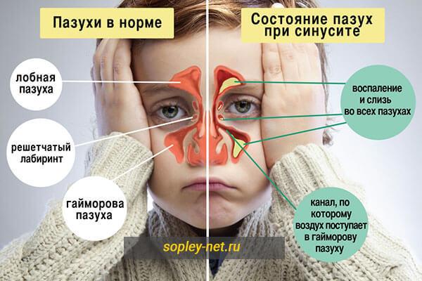 Виды соплей: влияние цвета и густоты выделений на лечение