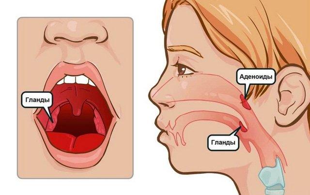 Симптомы аденоидов у взрослых – признаки воспаления