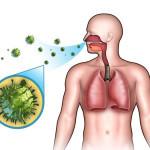 Е.О. Комаровский - симптомы и лечение фарингита