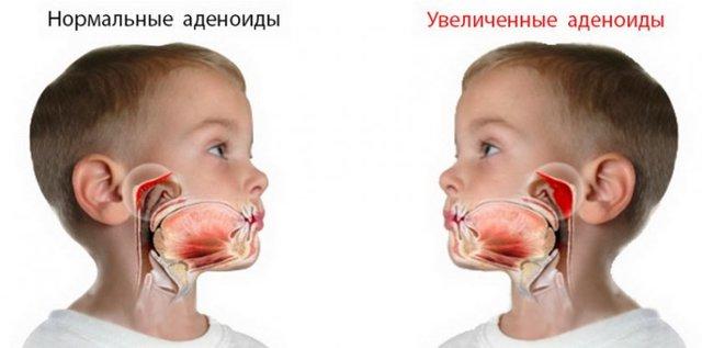 Облепиховое масло в нос ребенку при насморке – как капать детям