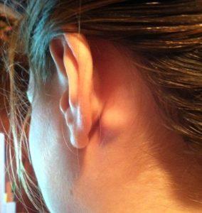 Лимфоузел около уха - воспаление за, под и возле ушей