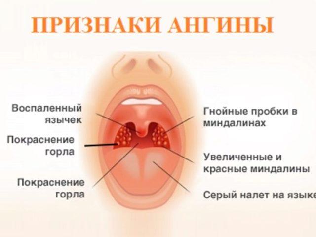 Герпетическая (герпесная) ангина — доктор Е.О. Комаровский
