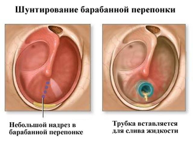 Катаральный отит у детей - симптомы и лечение острого воспаления у ребенка