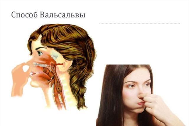 Продувание ушей и слуховых труб при отите – как продуть ухо