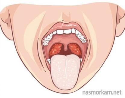 Какие бывают выделения из горла
