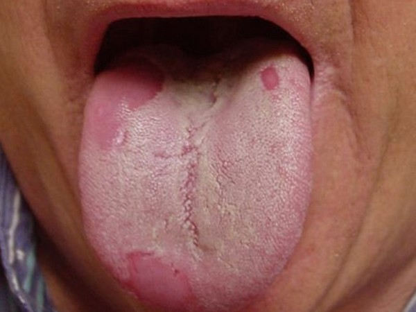 Комок в горле при глотании слюны - почему тяжело и больно глотать