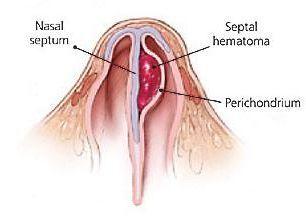 Гематома носовой перегородки, причины возникновения абсцесса носа