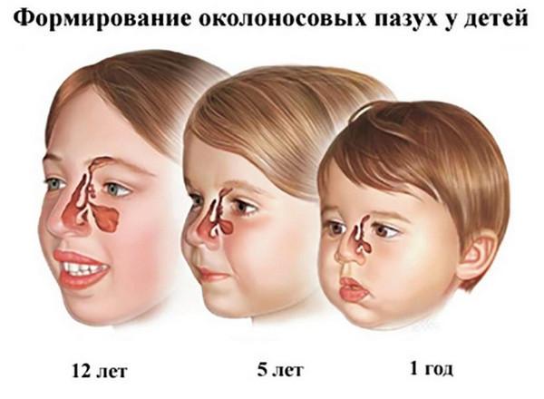 Верхнечелюстные или гайморовы пазухи носа - где находятся и зачем нужны