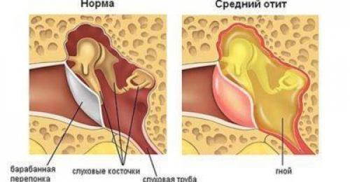 Борная кислота и спирт при отите – лечение и применение