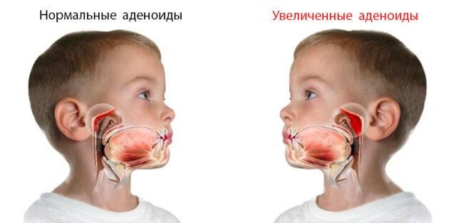 Аденоиды 1, 2 и 3 степени у детей - лечение ребенка