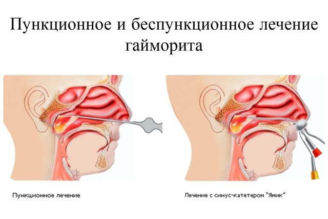 Последствия прокола при гайморите - что бывает после с гайморовыми пазухами