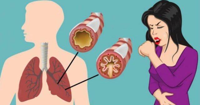 Кашель при грудном вскармливании у кормящей мамы – чем и как лечить