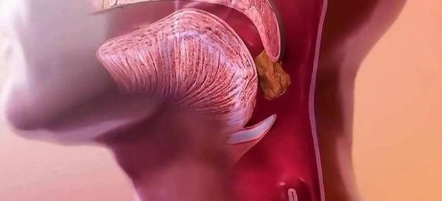 Еда застревает в горле – что делать, если кусочек пищи плохо проходит и стоит
