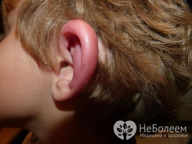 Что делать если опухло ухо и как снять отек