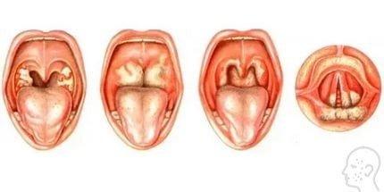 Лечение грибка в горле – как избавиться от фарингомикоза