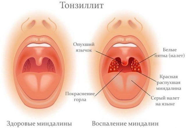 Вязкая и густая слюна в горле - причины и лечение