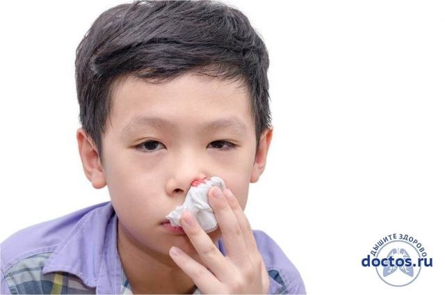 Кровь из носа у ребенка – носовое кровотечение у детей