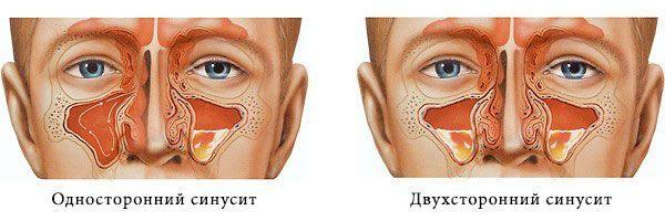 Хронический риносинусит – симптомы и лечение одностороннего и двухстороннего