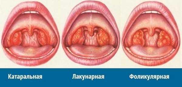 Какие бактерии вызывают ангину - возбудители заболевания