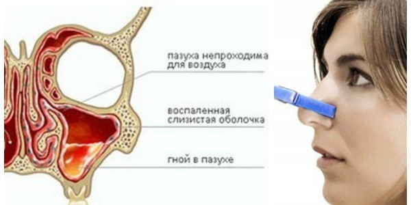 Что такое катаральный гайморит – двусторонний, правосторонний и левосторонний