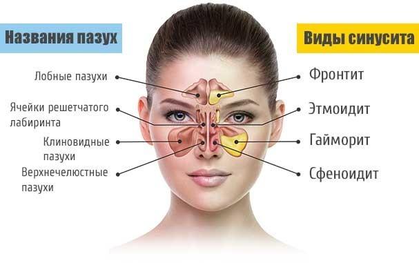 Ярко-желтые сопли у взрослого и выделения из ноздри