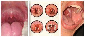 Ожог горла – симптомы и лечение химического повреждения