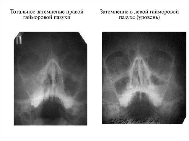 Что такое субтотальное и пристеночное затемнение гайморовых и верхнечелюстных пазух