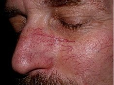 Почему краснеет нос – причины покраснения крыльев и кончика