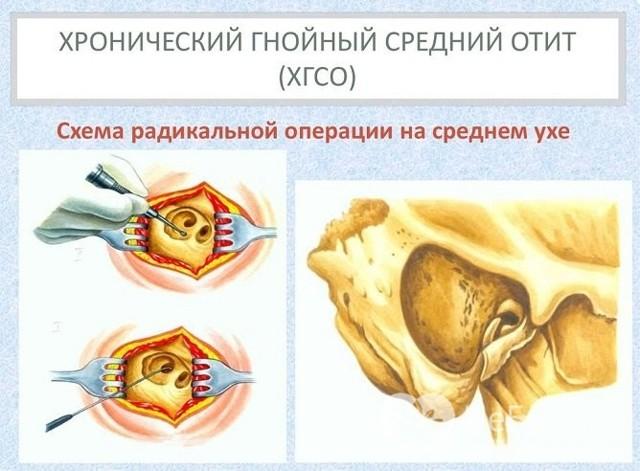 Хронический гнойный отит среднего уха – симптомы и лечение