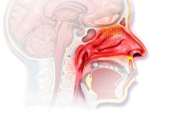 Что такое гиперпластический ринит - симптомы и лечение