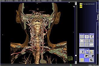 Исследования гортани - МРТ и фиброларингоскопия, рентген и ларингоскопия