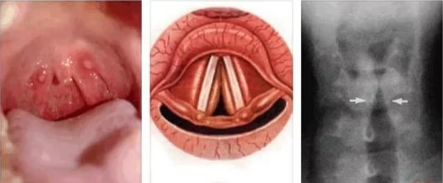 Перихондрит ушной раковины - симптомы и лечение хондроперихондрита