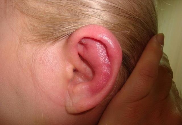 Воспаление мочки уха – что делать и как лечить