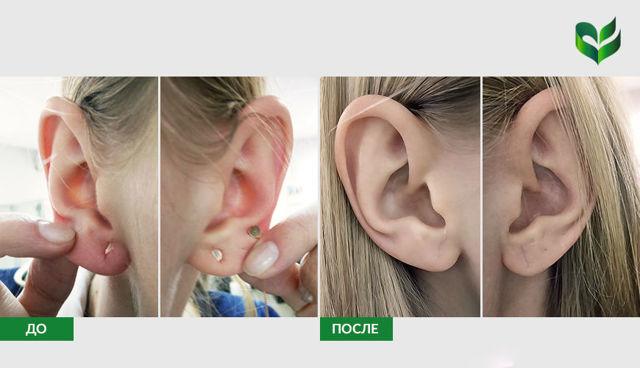 Процедуры и операции для лечения и устранения ушных дефектов