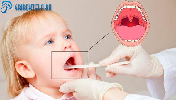 Грибковые заболевания горла – симптомы и лечение