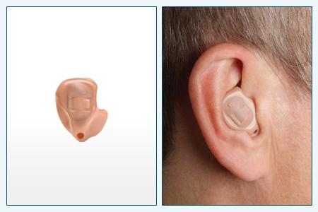 Цифровые слуховые аппараты – заушные и наушные устройства