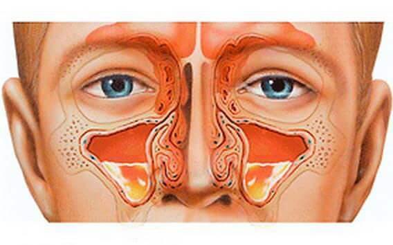 Лечение катарального гайморита - амбулаторно и народными средствами