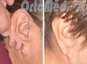 Пластика мочки уха – как ее зашить