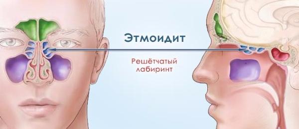 Что такое хронический этмоидит – симптомы и лечение