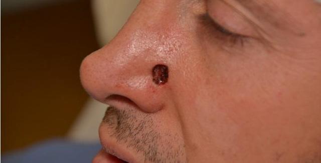 Рак носа – симптомы злокачественной опухоли слизистой полости